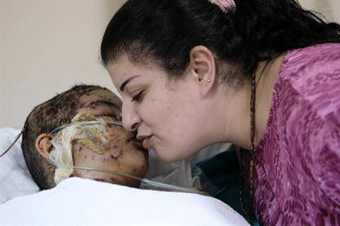 Young Girl Receives 300 Stitches After Bombing