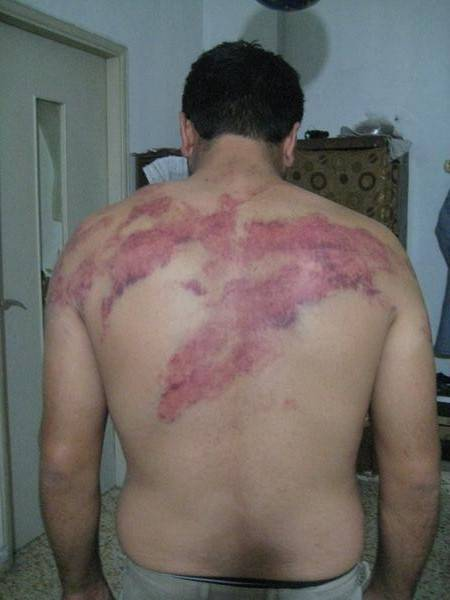 Report: Syrian Men Brutally Beaten by Lebanese Army
